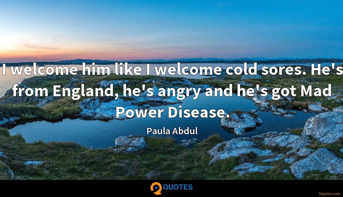 I welcome him like I welcome cold sores. He's from England, he's angry and he's got Mad Power Disease.