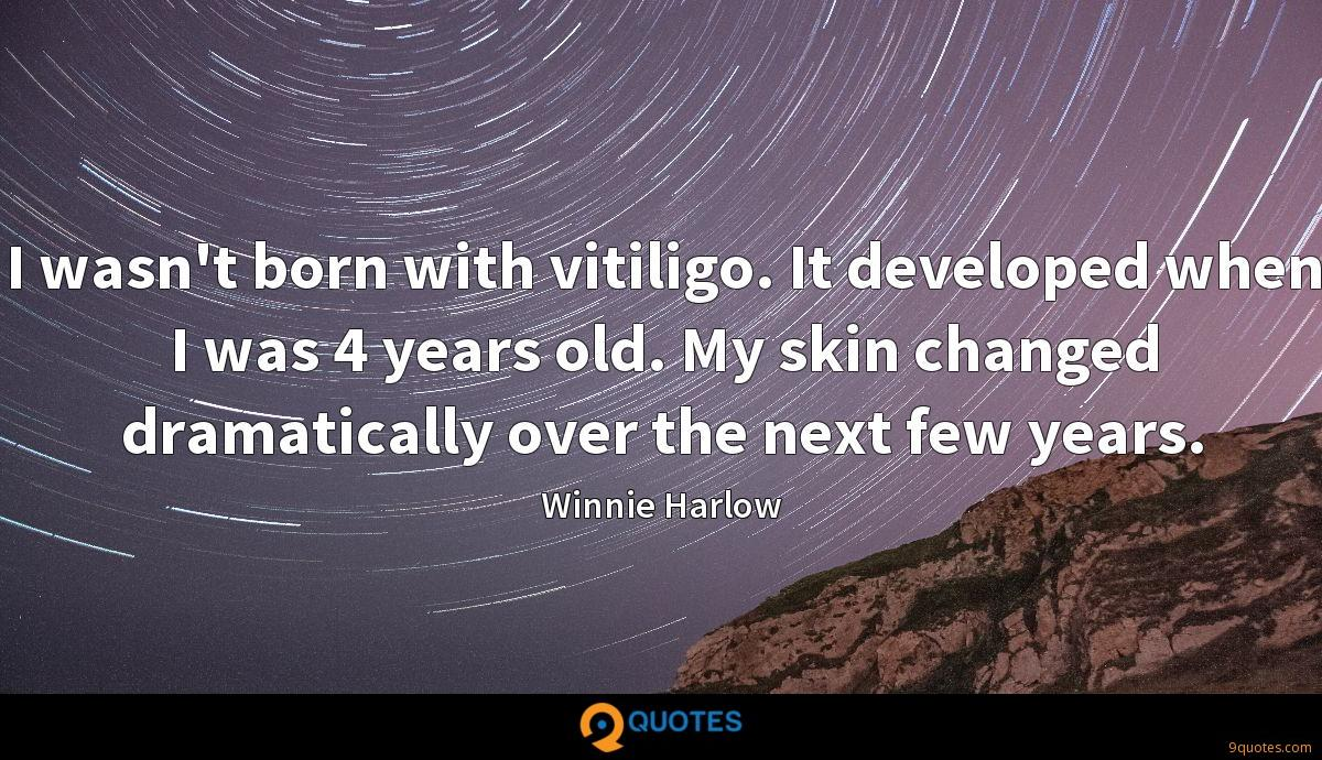 I wasn't born with vitiligo. It developed when I was 4 years old. My skin changed dramatically over the next few years.